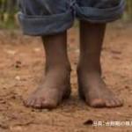 土に触れるとうつ病が改善する