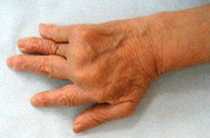 関節リウマチの患者でうつ病を併発する原因