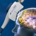 帝人ファーマがTMSうつ病治療機器の独占的販売権を取得