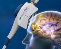 うつ病治療機器は帝人ファーマが導入したTMSが効果がある