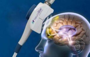 帝人ファーマが独占的販売権を取得したのはTMS治療機器NeuroStar