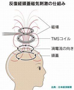 薬事承認された反復頭蓋磁気刺激療法はうつ病患者に朗報
