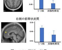 MRIで正確に双極性障害とうつ病を区別して診断する方法